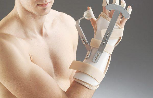 Протеза за китка и пръсти