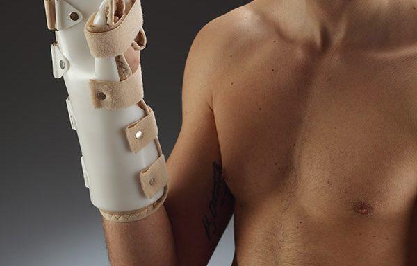 Подвижни протези за травми в китката